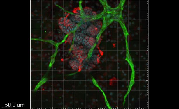 Foto mini-orgaan organoid UMCG Kanker Researchfonds Kankeronderzoek
